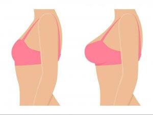 روش بزرگ شدن حجم سینه